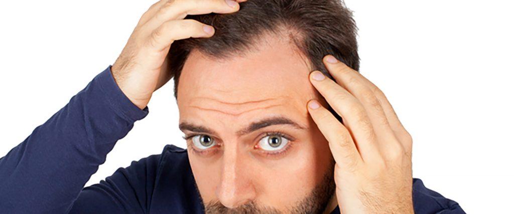 Geheimratsecken auffüllen mit einer Haartransplantation